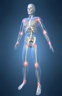 arthritis and antioxidants